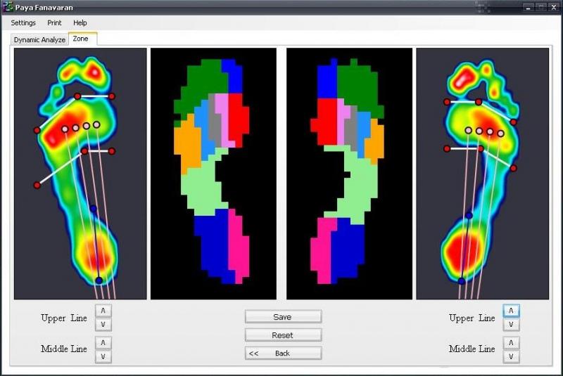کلینیک ارتوپدی فنی صحت بخش مرکز تخصصی پروتز پا، اسکنر، زانوی ضربدری، پای مصنوعی