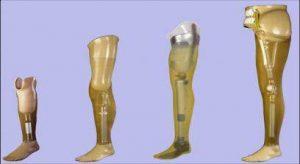 پروتز پا, زانوی ضربدری, کلینیک فنی صحت بخش