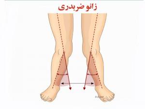 مرکز تخصصی پروتز پا، زانوی ضربدری، پای مصنوعی
