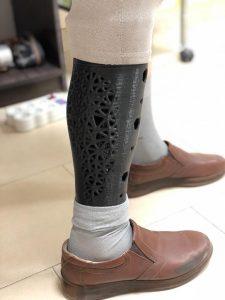 کاورهای چاپ شده سه بعدی پروتز پا
